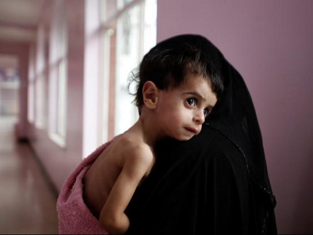 Additional one million children at risk of famine in Yemen, report shows