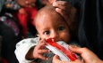 Treating Acute Malnutrition: UNICEF